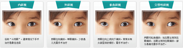 孩子斜视眼怎么治疗?