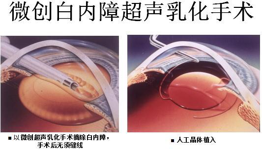 眩光、视力下降、眼朦胧是什么原因引起?