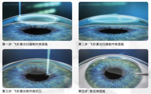 飞秒激光手术和晶体植入术的区别