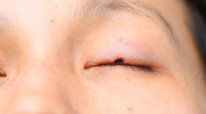 眼睛有异物感是什么原因引起?