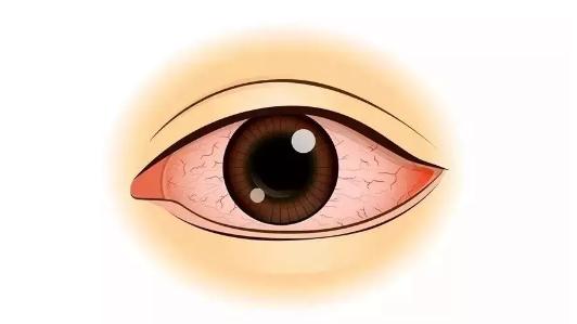 眼睛短暂视力模糊的原因