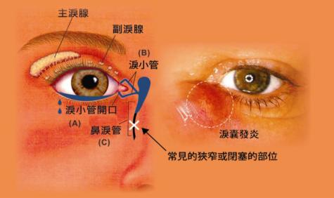 泪道阻塞是什么原因造成