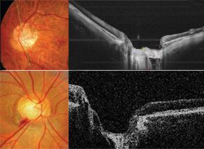 昆明手术治疗青光眼哪家眼科医院好