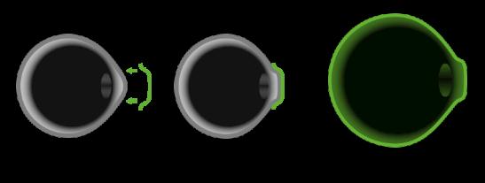 角膜塑形镜真的有用吗?
