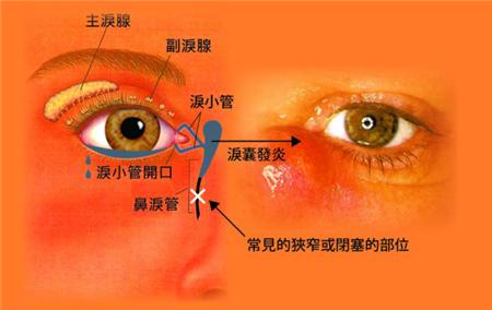 眼睛有异物感是什么原因