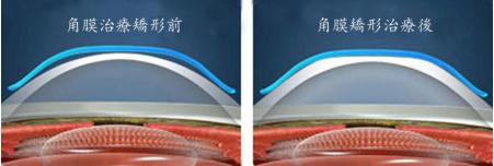 昆明角膜塑形镜多少钱?