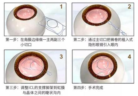 高度近视可以做近视激光手术吗?