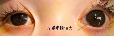 青光眼药物和手术哪种治疗好?
