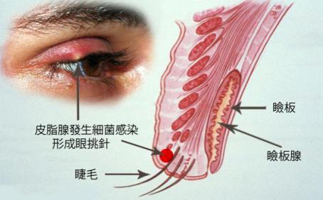 麦粒肿可以用眼药水治疗吗?