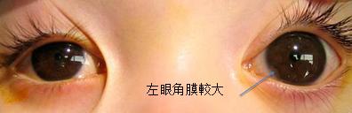 青光眼可以治好吗?