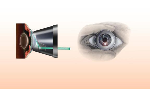 急性青光眼有哪些症状