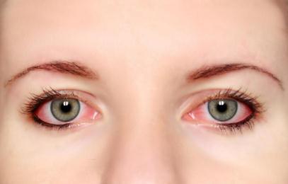 眼红、头痛、头晕作呕是青光眼吗
