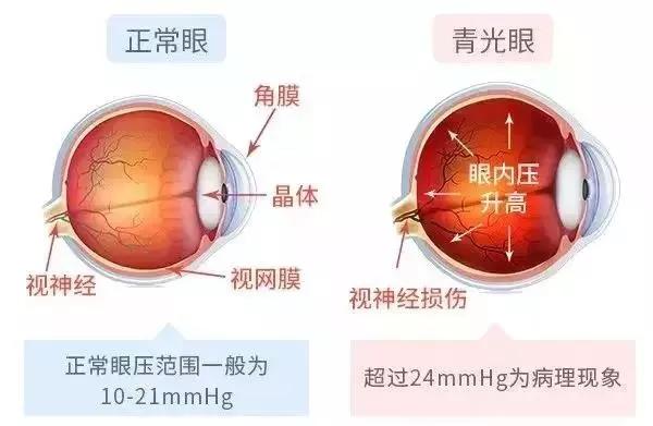昆明哪家医院治疗青光眼效果好