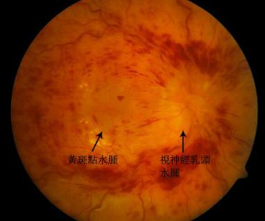 昆明哪家医院能治疗视网膜脱落