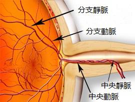 视网膜脱落的症状有哪些?