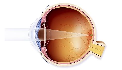 昆明哪家眼科医院做白内障手术效果好?