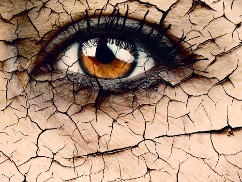 干眼症怎样治疗好得快?