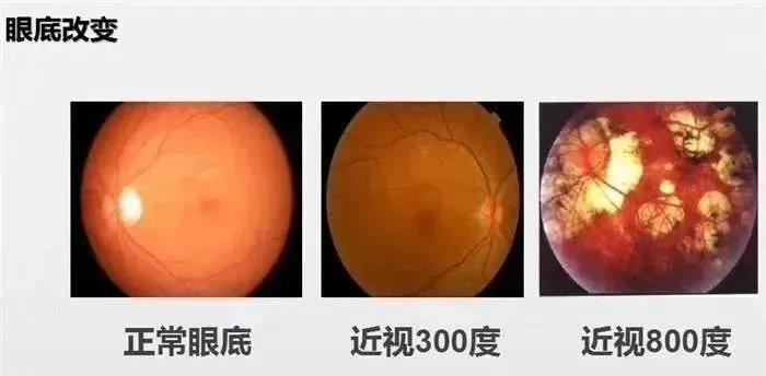 昆明治疗视网膜脱落的医院哪家好?