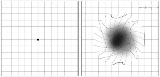 视物模糊变形,眼前有黑影是怎么回事?