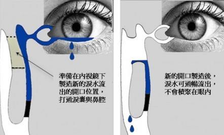 泪道阻塞治疗方法有哪些?