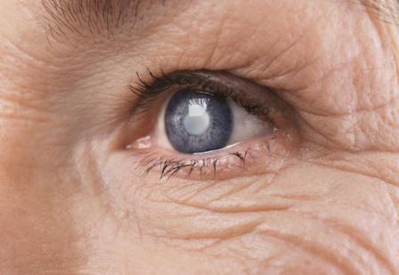 白内障和青光眼怎么治疗好得快?