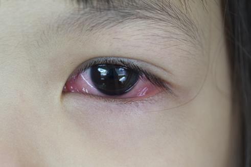 红眼病怎么治疗好得快?